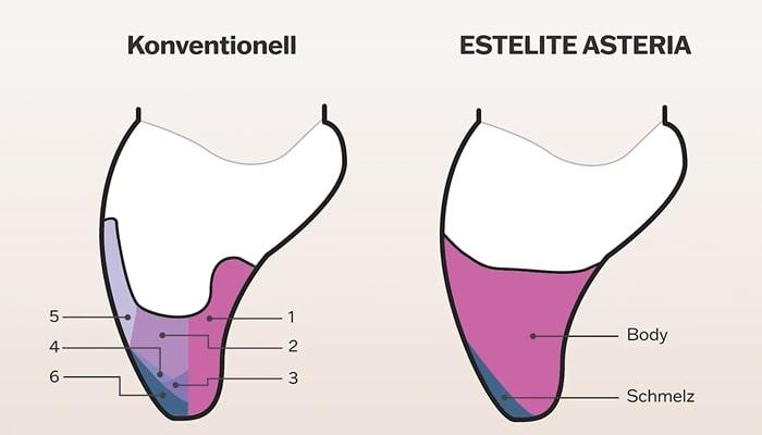 estelite-asteria-simple-layering-de