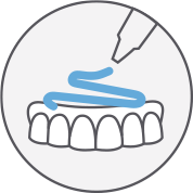 media/image/tokuyama-dental-unterfuetterung-teaser.png